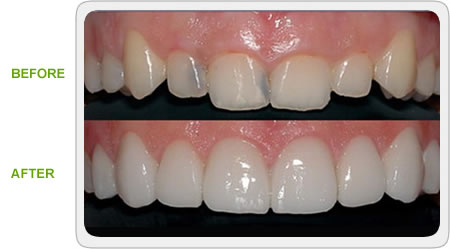 porcelain veneers and crowns